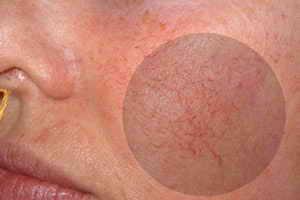 Прививка от вируса папилломы человека в рязани