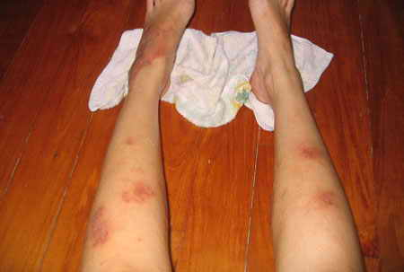 Симптомы и лечение лейкоза