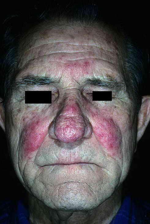 симптомы розовых угрей розацеа