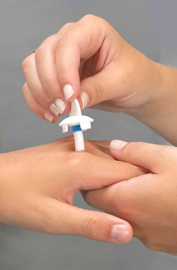 Преимущества удаления бородавок Криофармой