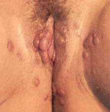 Симптомы кондиломатоза у женщин