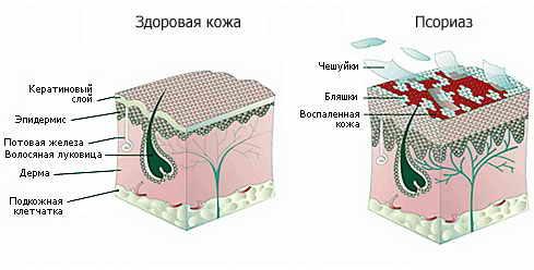 Моноклональные антитела при псориазе