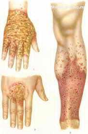 Профилактика при лечение дисгидротической экземы