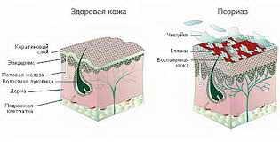 методы лечения псориаза волосистой части