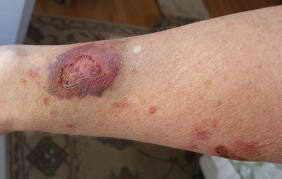 Лечение варикозной экземы