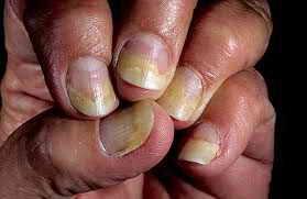 секреты лечения псориаза ногтей