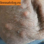 Фотография ангиокератомы кожи