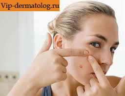 Как вылечить акне на лице