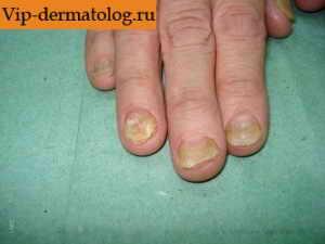 дерматофития кожи и ногтей