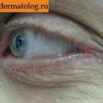 Заболевание блефарит