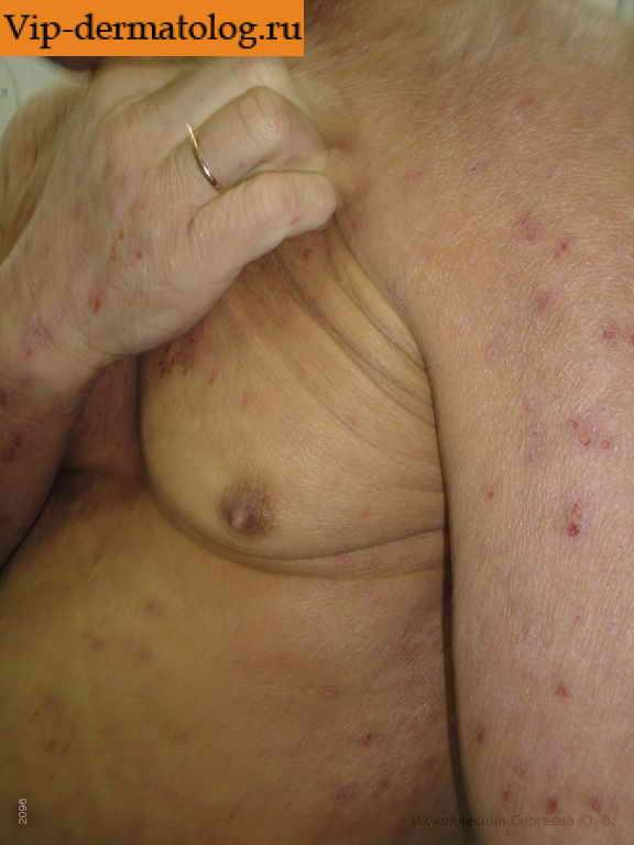 Аллергический дерматит у детей фото, лечение, советы