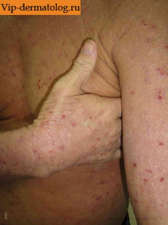 Лечение кожной экземы