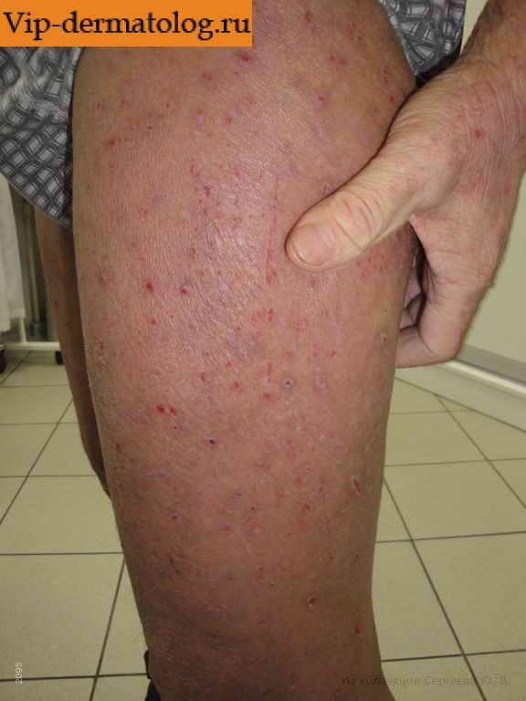 Атопический дерматит лечение капельницы