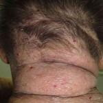 атопический дерматит на голове и лице