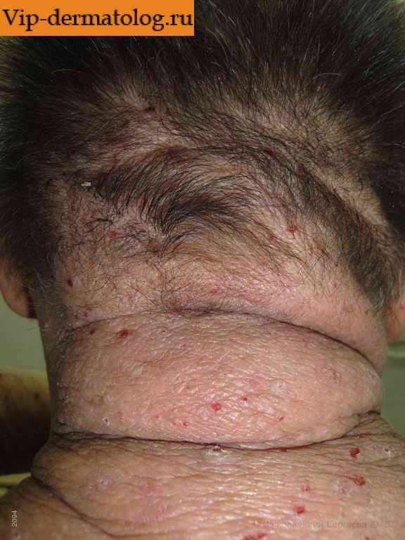 Лечение атопического дерматита плазмаферезом