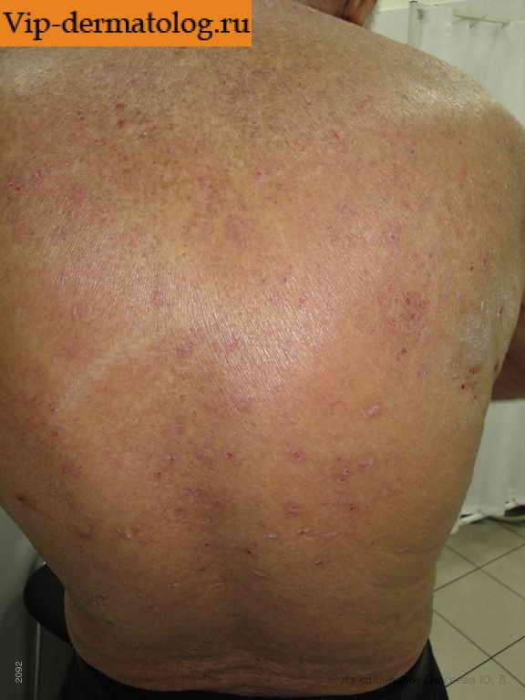 Фото начальной стадии псориаза первые симптомы заболевания и его лечение