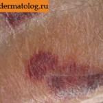 Фотография геморрагического синдрома