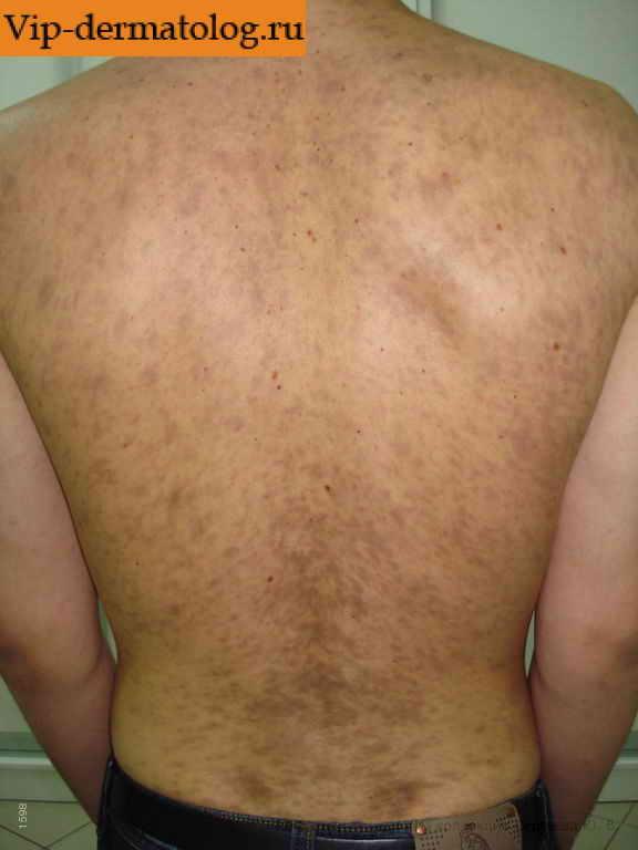Гольфы после операции варикоза