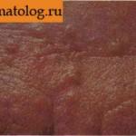 Гиперплазия сальных желез