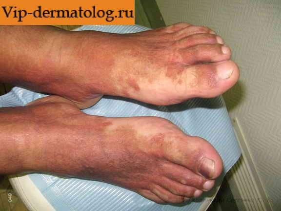 Фотография болезни шамберга