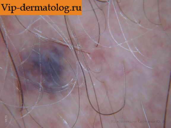 Болячка на женском органе