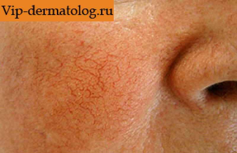 Тромбоз симптомы фото лечение