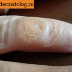 Очаговая кератодермия