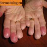 Фотография дерматита контактного