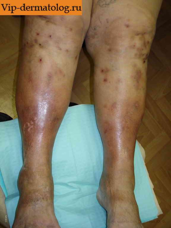 Аллергический псориаз продукты-триггеры симптомы и лечение заболевания