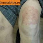 Фотография дерматофитии на ноге