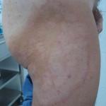 Фотография микоза гладкой кожи