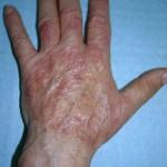 Фотография микоза рук и кистей