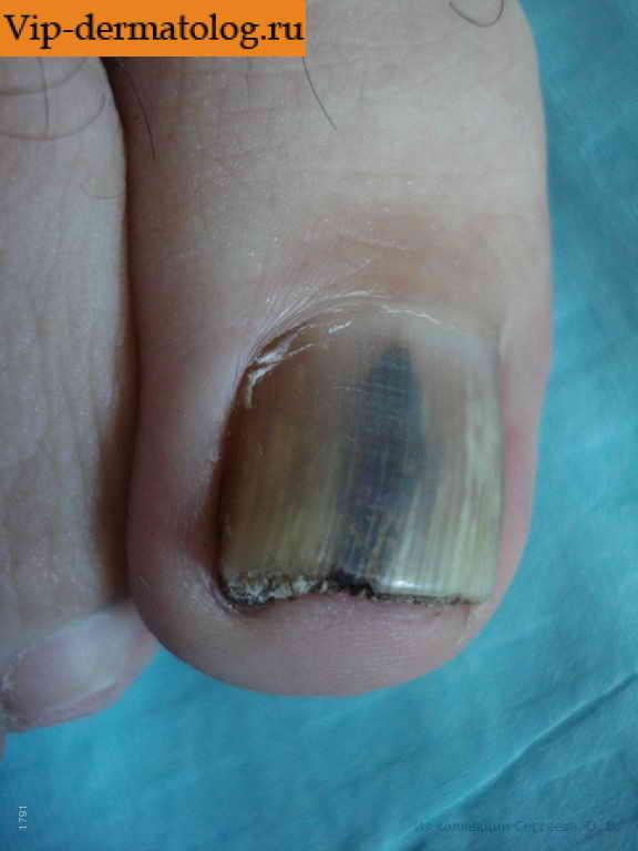 Грибок ногтей малышева здорово жить