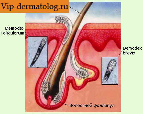 Схема лечения демодекоза век у