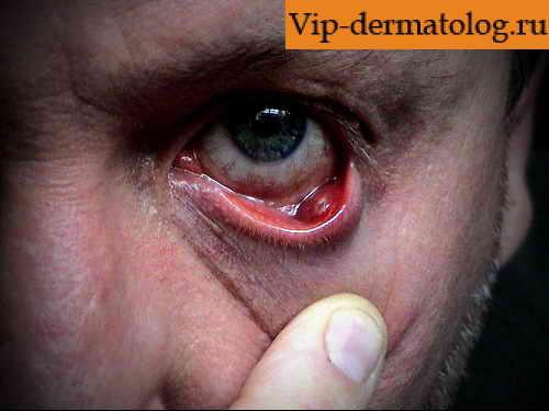 glaznie-kleshi-simptomi-pri-psoriaze