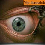 Глазной демодекоз: симптомы и лечение