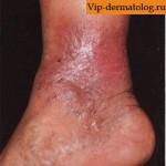 опухоль голени на ноге
