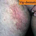 Микоз паховой области — сиптомы и лечение