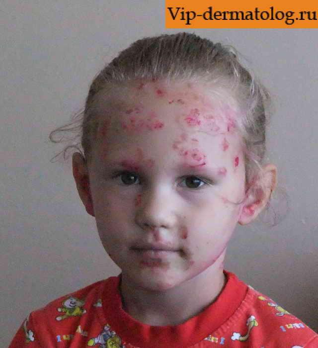 Стрептодермия у детей фото и видео. Как выглядит сухая