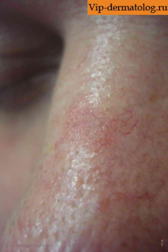 Клещ демодекс на глазу причины появления и лечение