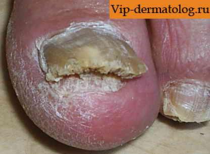 Современные средства борьбы с грибком ногтей