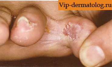 Ногти лечение красноярск