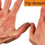 Лекарства для лечения экземы на руках