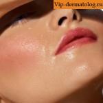 жирная себорея кожи лица лечение