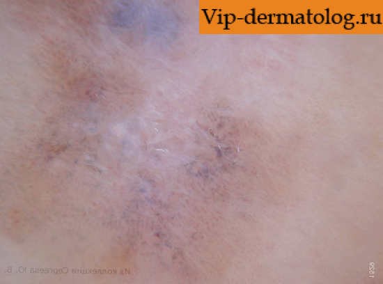 Бесцветная меланома кожи фото