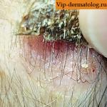 себорейная кератома кожи