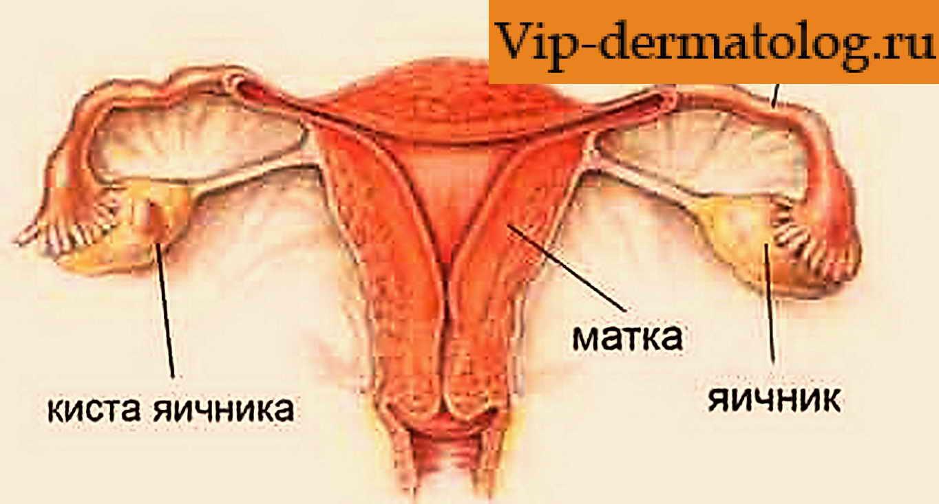 Киста яичника у беременной женщины 80