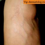 склероатрофический лишай на ноге