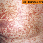 мастоцитоз кожи