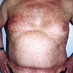 Фотография мастоцитоза кожи